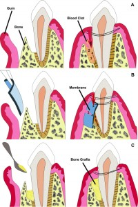 Prisma Dental Periodontal Regenerative Surgery