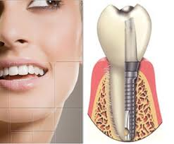 dental-implants 1