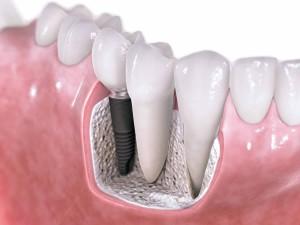 costa rica dental-implants 1