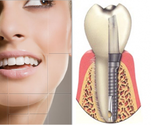 costa rica dental implants 1