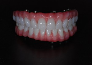 Implant Supported Hybrid Denture
