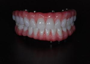 Implant Supported Hybrid Denture