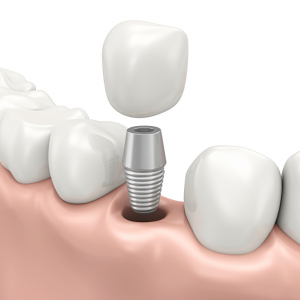 dental implants costa rica 1