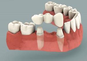 dental bridges costa rica