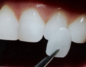 dental veneers costa rica