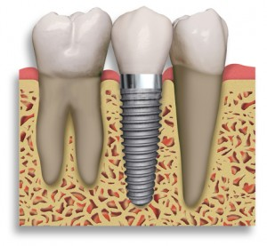 dental implants costa rica