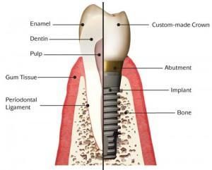 costa rica dental implants 1