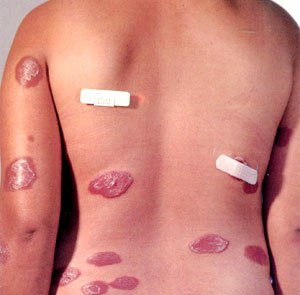 leprosy-multiple-lession