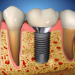 costa rica dental implants main