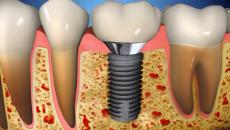 costa rica dental implants main