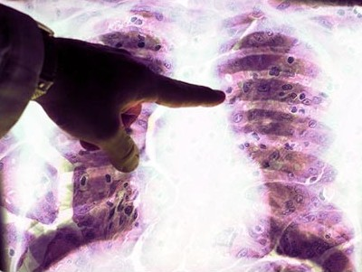 Mesothelioma cancer news