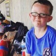 Kaiser Carlile dies hit by baseball swing main