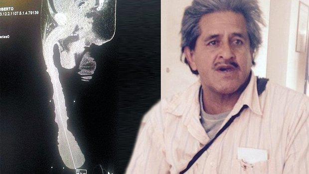 Roberto Esquivel Cabrera penis 1