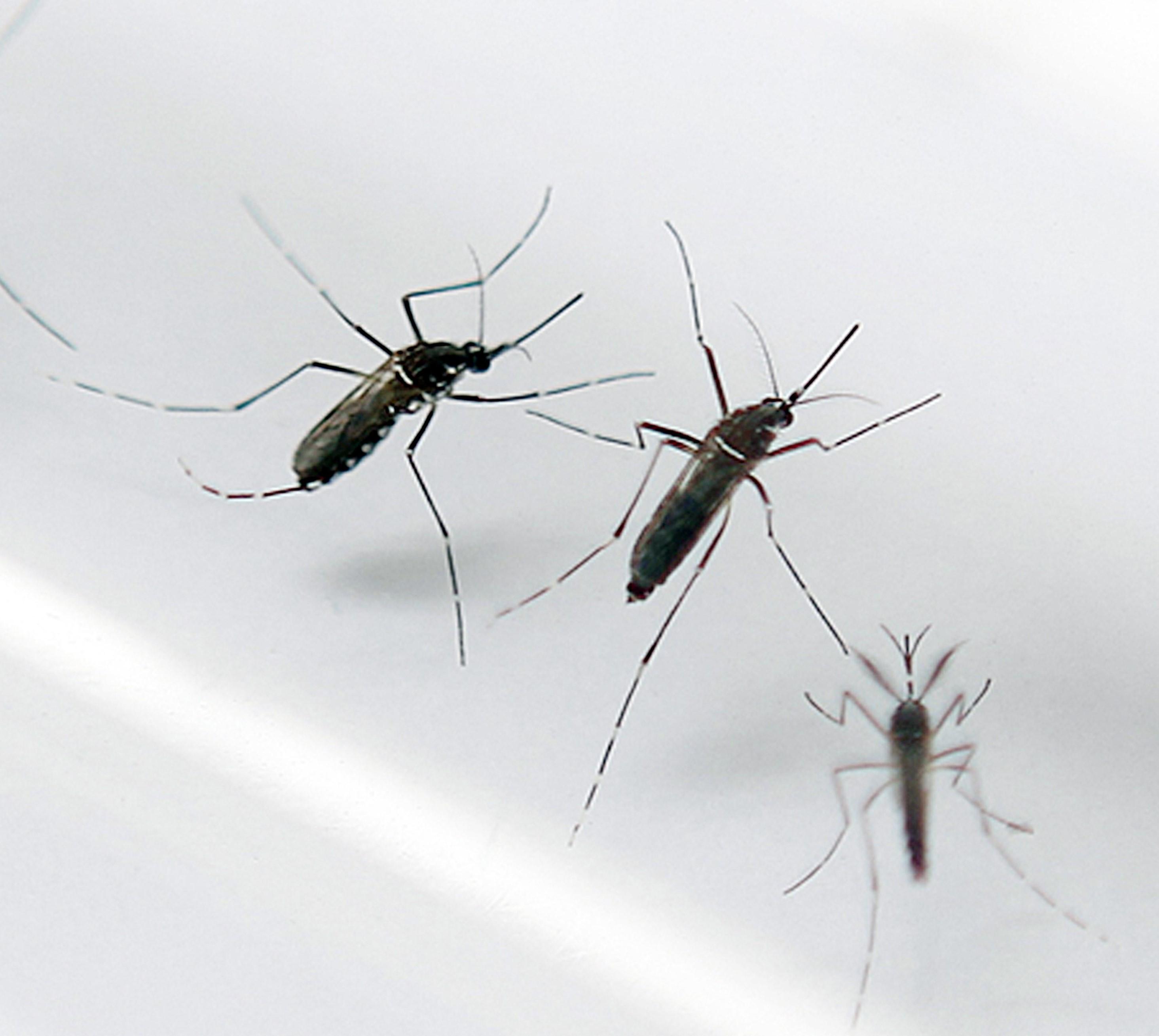 microcephaly zika virus 1